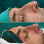 Plastic Surgery For Nose Bump (1)