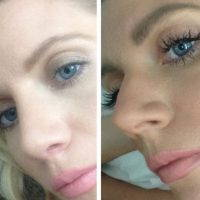 Plastic Surgery For Nose Is The Most Difficult Of All Facial Plastic Surgical Procedures