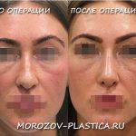 Procedure Fixing A Deviated Septum Before And After