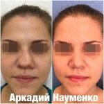 Procedure Fixing A Deviated Septum Before And After Photos (3)