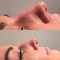 Radiess Nose Job Can Correct Imperfections On The Nose,