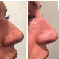 Radiesse Allows The Nose To Be Reshaped Without Surgery