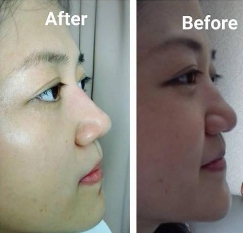 Radiesse Asian Nose Bridge Photos » Rhinoplasty: Cost, Pics