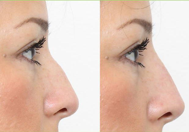 Radiesse Is A Recontouring With Non-surgical Nose Job