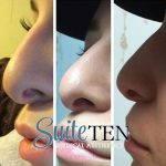 Radiesse Nose Lift Picture (3)