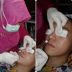 Radiesse Rhinoplasty Is A Permanent, Minimally Invasive, Non-surgical Nose Reshaping Procedure