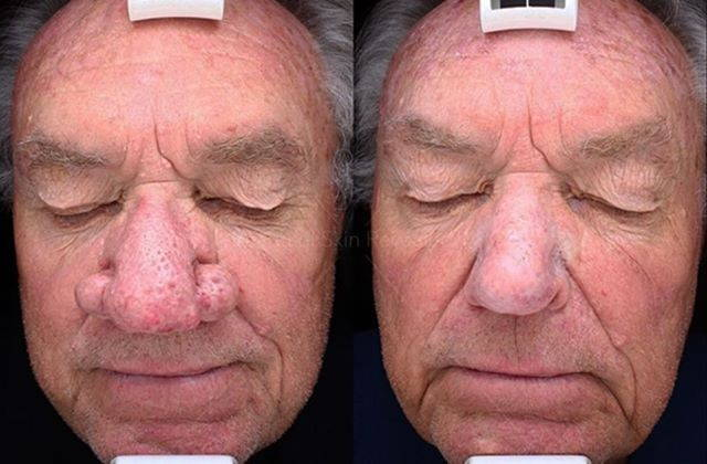 Rhinophyma Of The Nose Rhinoplasty Cost Pics Reviews Q A
