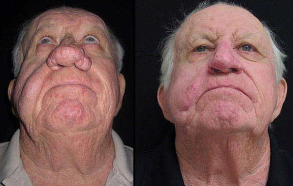 rhinophyma before and after » rhinoplasty: cost, pics, reviews, q&a, Skeleton