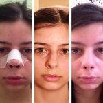 Rhinoplasty After A Month