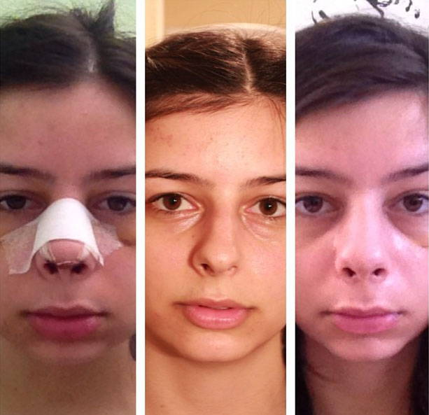 Rhinoplasty After A Month Rhinoplasty Cost Pics Reviews Q A