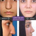 Rhinoplasty Big Nose Before After (7)