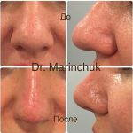 Rhinoplasty Big Nose To Small Nose Preop An Postop (1)