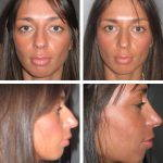 Rhinoplasty Big Nose To Small Nose Preop An Postop (10)