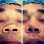 Rhinoplasty Big Nose To Small Nose Preop An Postop (11)