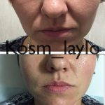 Rhinoplasty Big Nose To Small Nose Preop An Postop (4)