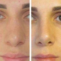 Rhinoplasty For A Nose That Hooks At The End Near The Tip Of The Nose