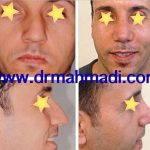 Rhinoplasty For Big Nose (3)