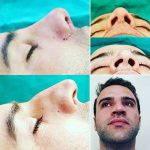 Rhinoplasty For Big Nose (4)