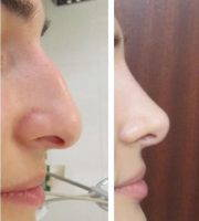 Rhinoplasty For Big Nose If Your Nose Is Wide At The Tip, Nostrils, Or Bridge