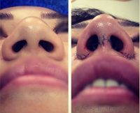 Rhinoplasty Nostrils If You Have Nostrils That Are Excessively Flared Or Pinched