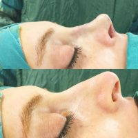 Rhinoplasty Nostrils Is A Very Effective Surgical Solution For Changing The Size Or Reshaping Your Nose