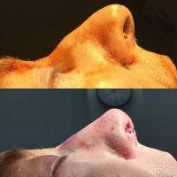 Rhinoplasty Nostrils Is Among The Five Most Popular Plastic Surgery Procedures Performed In The United States