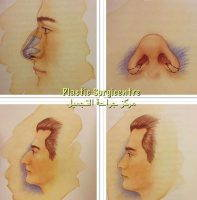 Rhinoplasty Nostrils Is Surgery On The Nose To Change Its Shape Or Improve Its Function