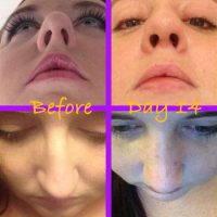 SeptoRhinoplasty Is To Improve Nasal Airflow