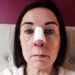 Septoplasty Before And After Photos (9)