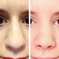 Septoplasty Surgery Is Done Also At The Time Of Rhinoplasty