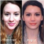 Septorhinoplasty And Rhinoplasty Before And After (11)
