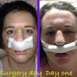 Septorhinoplasty And Rhinoplasty Before And After (2)