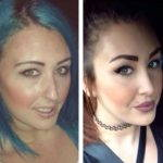 Septorhinoplasty Before And After Photos (5)
