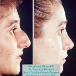 Septorhinoplasty Images (2)