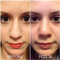 Septorhinoplasty Is A Surgery Which Changes The Form Of The Nose