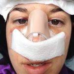 Septorhinoplasty Pictures (10)