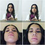 Septorhinoplasty Pictures (3)