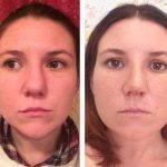 Septorhinoplasty Pictures (4)