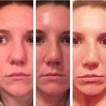 Septorhinoplasty Pictures (6)