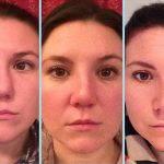 Septorhinoplasty Pictures (9)